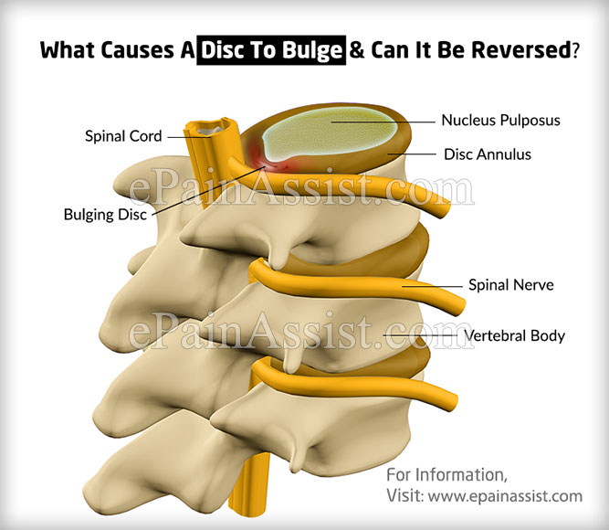 What is a Bulging Disc?