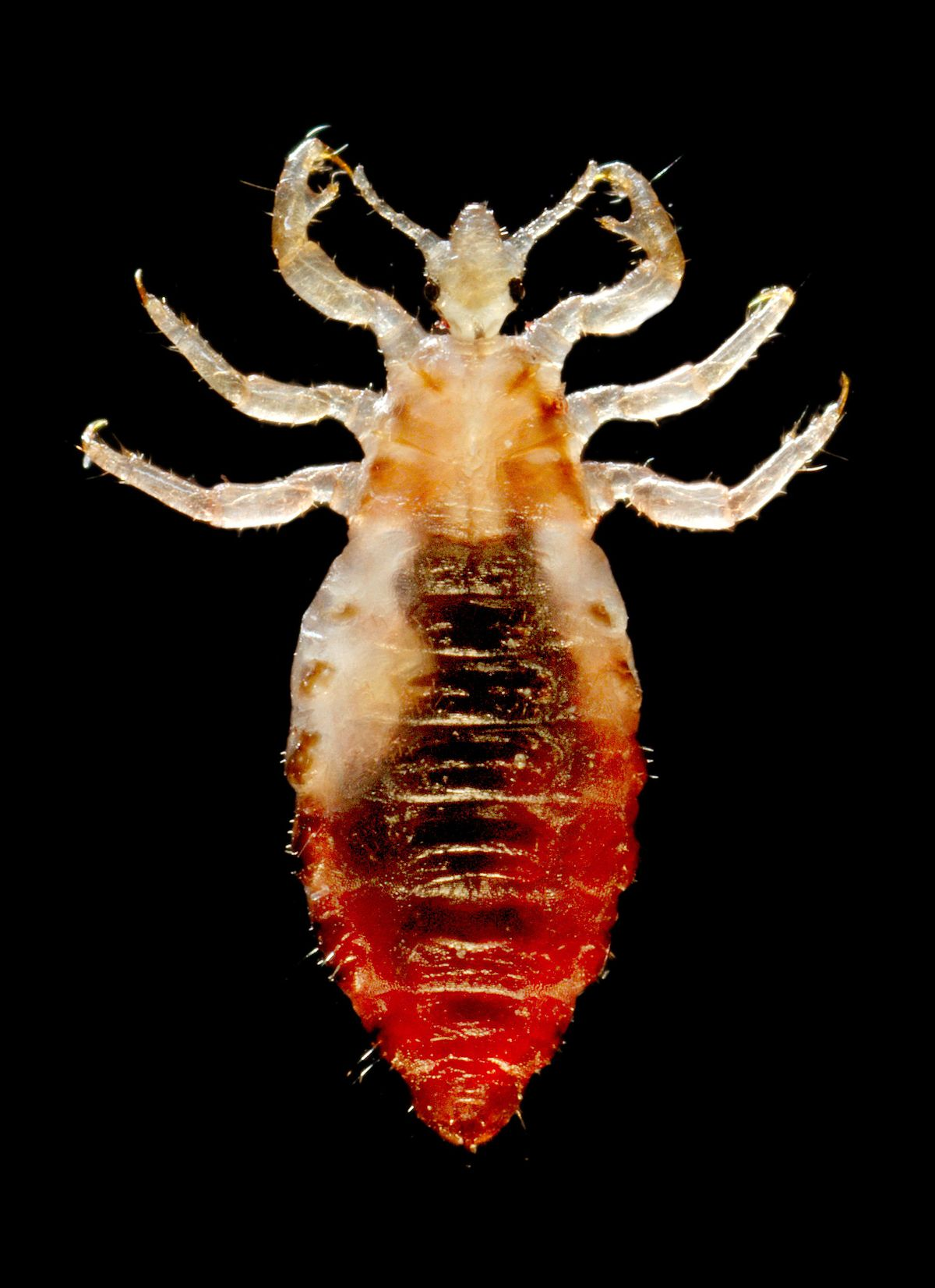 Head Lice Pictures – Louse Photo Gallery with Facts